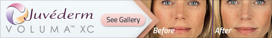 juvederm gallery