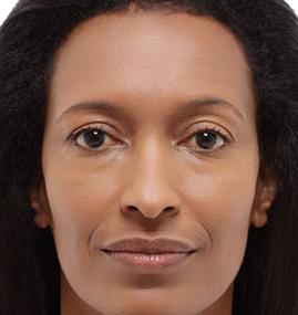 Female Radiesse Before Results