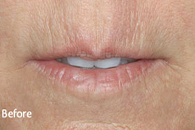 Female Restylane Before Results